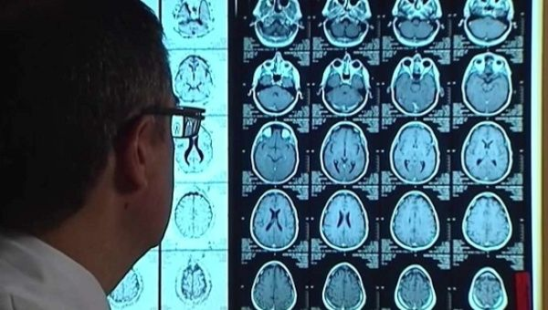 There are currently about 300 clinical trials in progress regarding Alzheimer