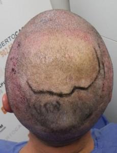 preoperatorio 10-11-2011 (2)