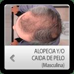 1326566162r_alopecia_masc_otros