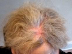 thumbs_trasplante-capilar-feminino-0097