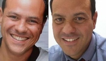 Antes y después Dr. Pelo