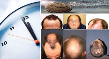 Tiempo trasplante pelo