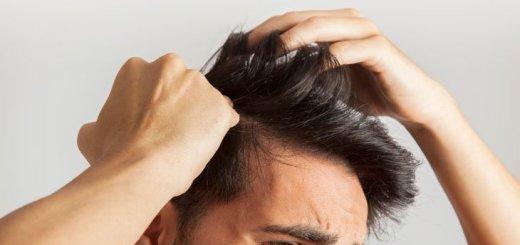 ¿Cuándo la pérdida de cabello es un hecho preocupante?