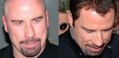 famosos que sufren alopecia - John Travolta Calvo