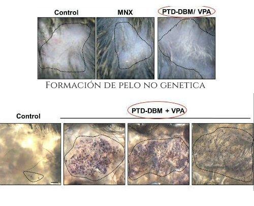 PTD-DBM Cura de la calvicie y la alopecia