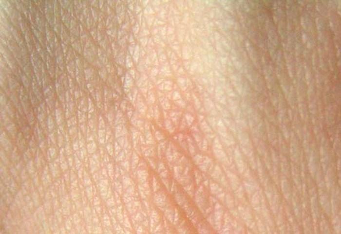 Estructura de la piel humana - Acido Hialuronico