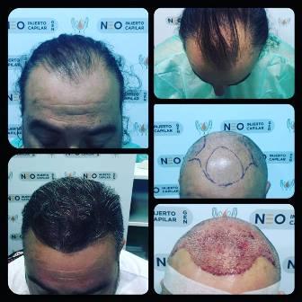 Una doctora a la cabeza de la cirugía capilar española