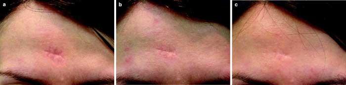 Tratamiento en Cicatrices