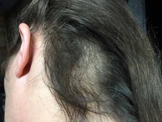 Tricotilomanía-cuello