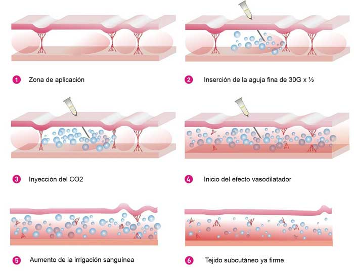 procedimiento-carboxiterapia