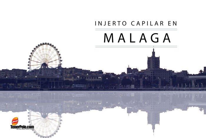Injerto Capilar en Málaga