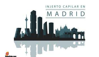 Injerto Capilar en Madrid