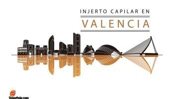 Injerto-Capilar-en-Valencia