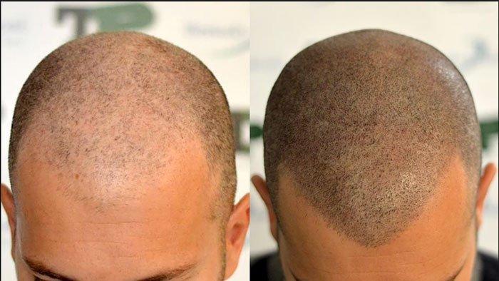 Tricopigmentación-antes-y-despues