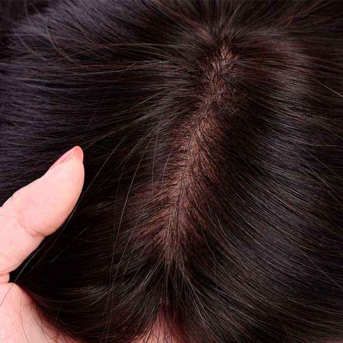 Prótesis Capilares Femeninas - Alopecia Femenina