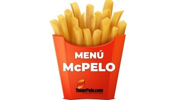 Patatas McDonalds calvicie - Regeneracion capilar