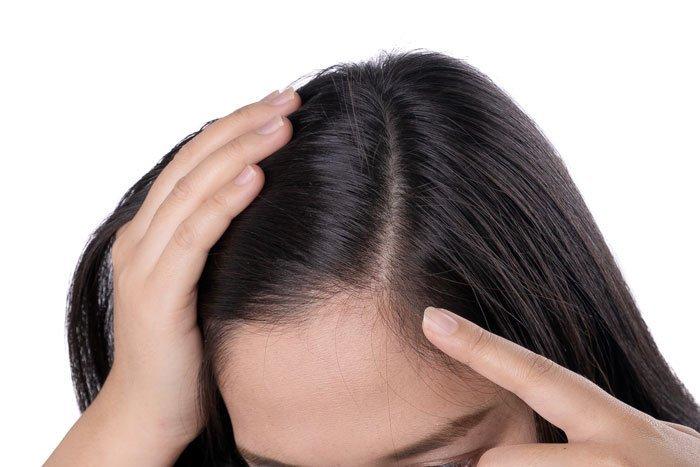 Alopecia frontal fibrosante y cicatrizal