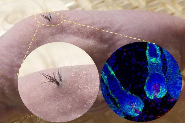 Células pluripotenciales