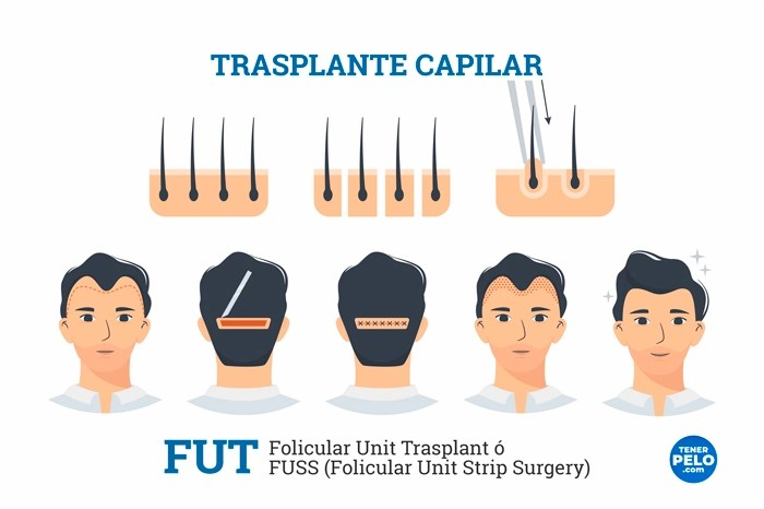 Trasplante Capilar FUT o FUSS.