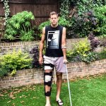 Juan Martin Del Potro Withdraws From Queen's Tennis • Suffers Injury In Right Knee