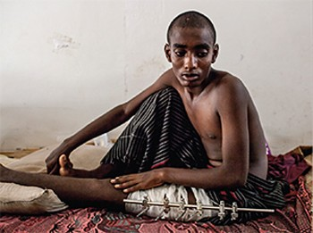 Ethiopian migrant, 19, at a local medical facility in Haradh. He said he was tortured for a month and shot in the leg by traffickers trying to extort money from family members abroad, May 2013.