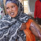 <Ethnic Violence in Ethiopia Leaves Deep Wounds