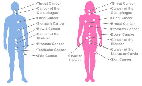 how-many-types-of-cancer-are-there
