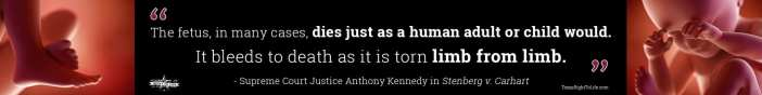 Dismemberment Abortion Quote - Justice Anthony Kennedy (long 3)