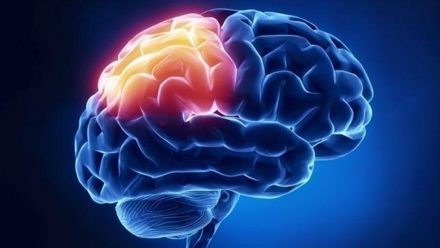 Brain tumor_1490216670778.jpg