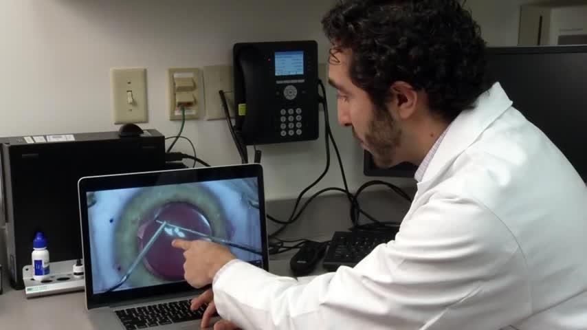 Health Cast- Cataract Surgery_85481814