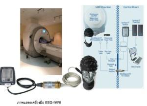 EEG-fMRI 3