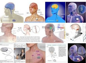 Hx epilepsy 7