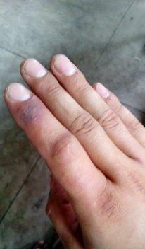 Chřestýšovec běloretý - uštknutí Kambodža