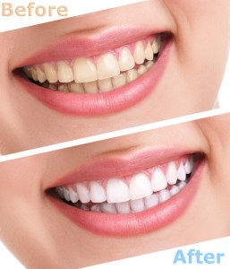 Teeth whitening - a before/after example
