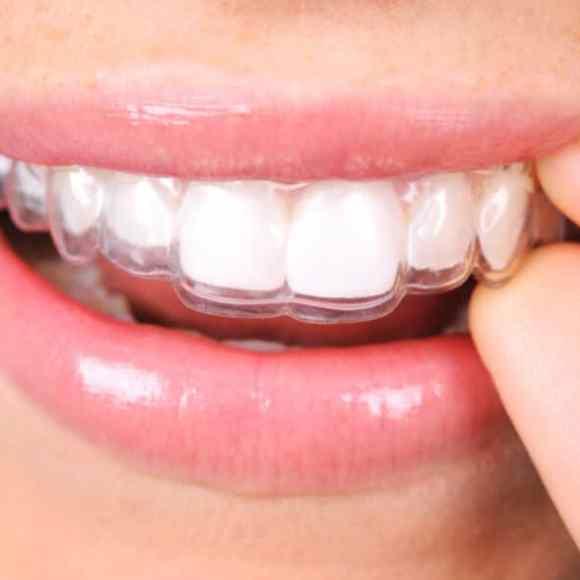 Invisalign Teeth Straightening in Kingston!