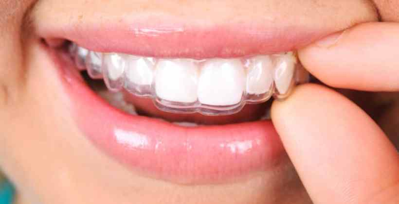 Invisalign Teeth Straightening in Kingston!