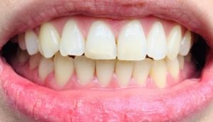 Invisalign Mild Crowding - After