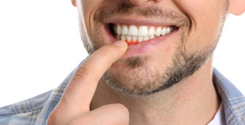 What to do if you have Sore Gums