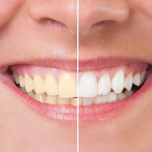 Yellow Teeth, White Teeth using Teeth Whitening