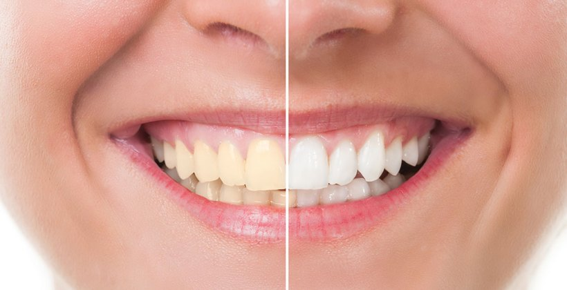 Think Twice Before Buying Teeth Whitening Kits Online!