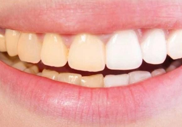 Enamel Erosion & Tooth Wear