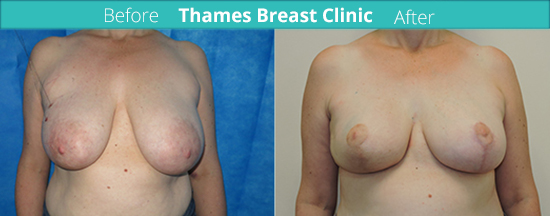 thames-breast-clinic-oncoplastic-surgery-case-2