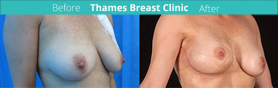 thames-breast-clinic-reconstruction-surgery-case-1