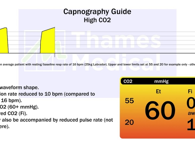 maxresdefault 10 1 1 640x480 c - The Capnography Resource Centre