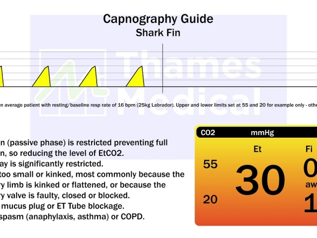 maxresdefault 14 1 1 640x480 c - The Capnography Resource Centre