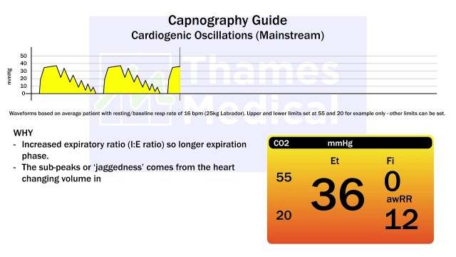 maxresdefault 19 1 1 - The Capnography Resource Centre