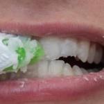 إزالة الجير عن الأسنان، ثقف نفسك 3