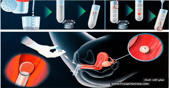 الحقين-المجهري-لعلاج-العقم