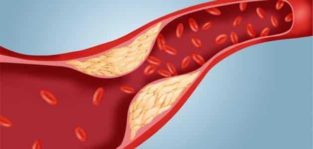 أفضل 6 أطعمة تنظم الكولسترول في الجسم