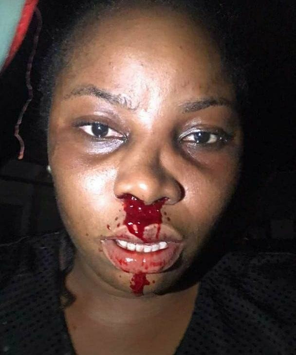 Woman accuses police officers of assaulting her and leaving her with a bleeding face (videos)
